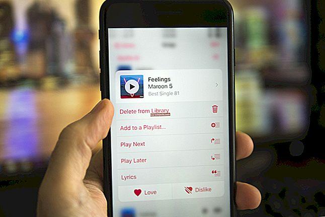 """Kaip ištrinti dainas iš """"iPad"""""""